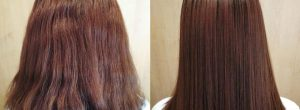 Cirugía capilar antes y después