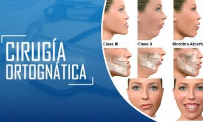 Cirugia ORTOGNATICA
