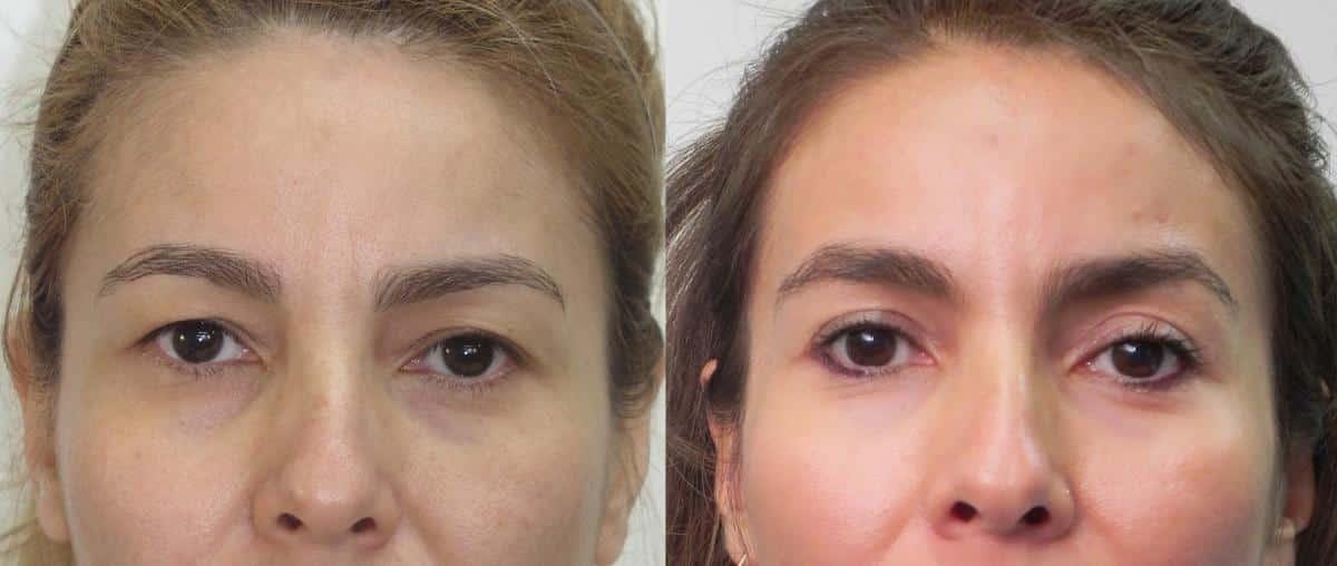 Antes y despues cirugia de parpados