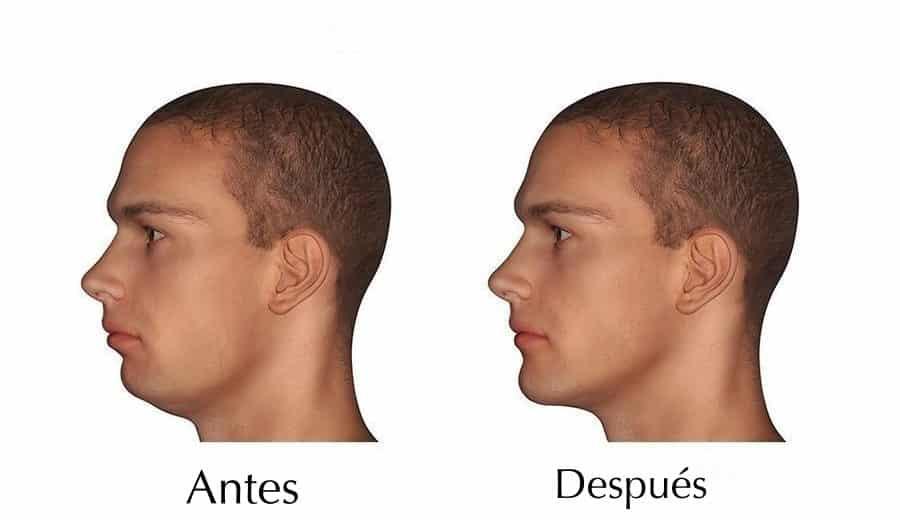 Antes y despues cirugia ortognatica