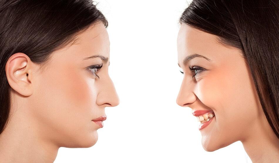 Antes y despues rinoplastia