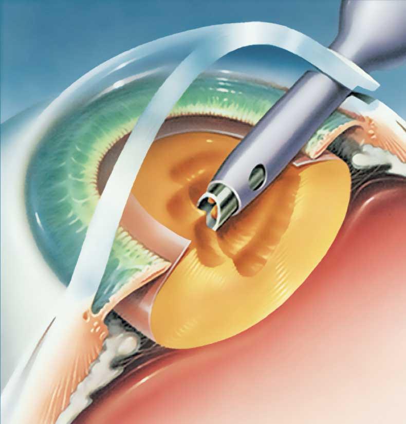 Procedimiento cirugia de cataratas