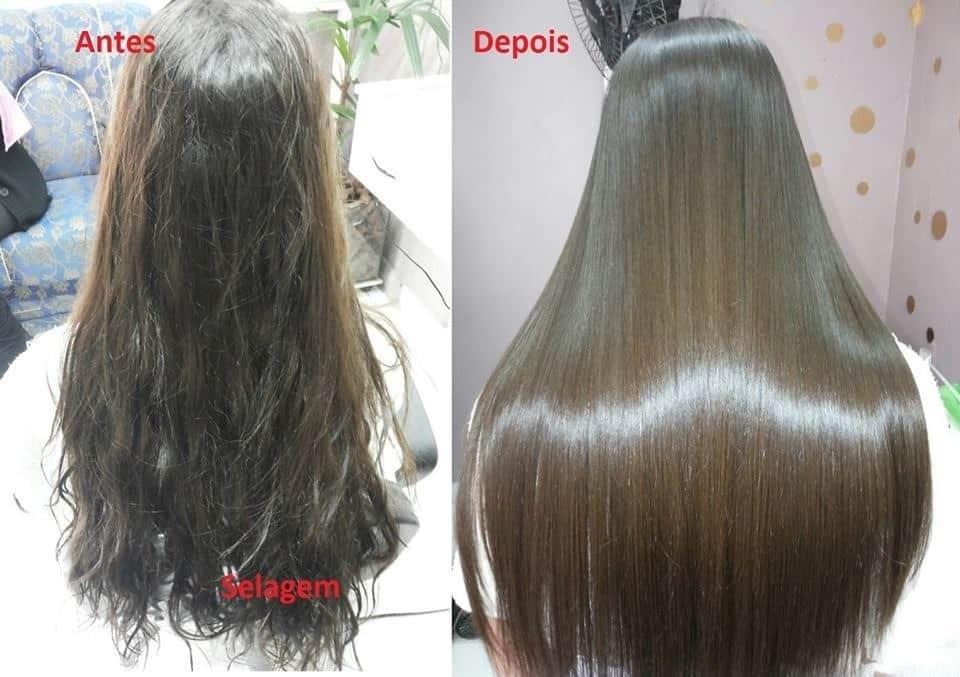 Resultados de la cirugía capilar antes y después