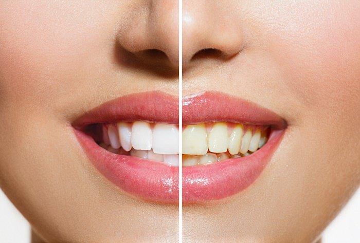 Remedios caseros para blanquear los dientes fácil