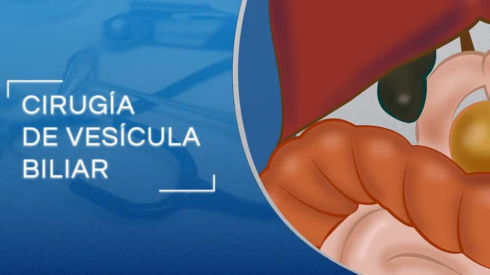Cirugía de Vesícula Biliar