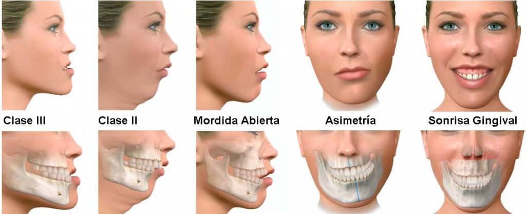 Defectos que requieren cirugia maxilofacial