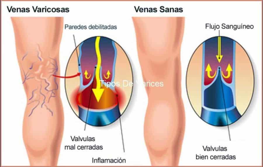 Remedios caseros para las varices en las piernas
