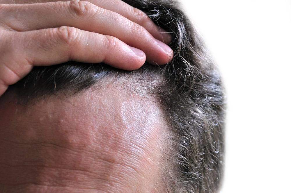 Ayuda a combatir la caspa y la caída del cabello