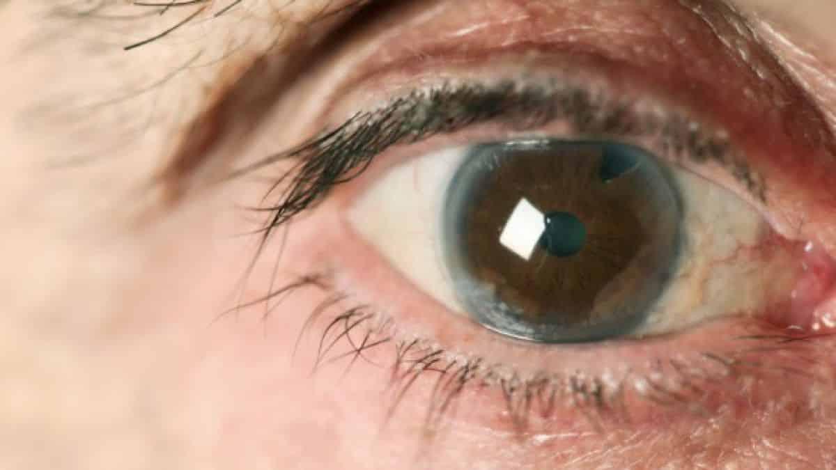 beneficios de la guayaba salud visual