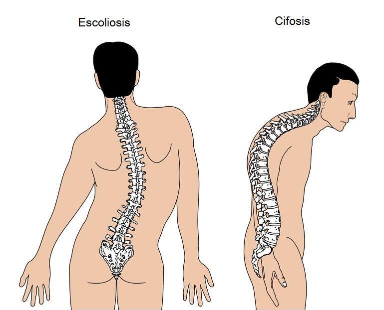 Escoliosis y cifosis