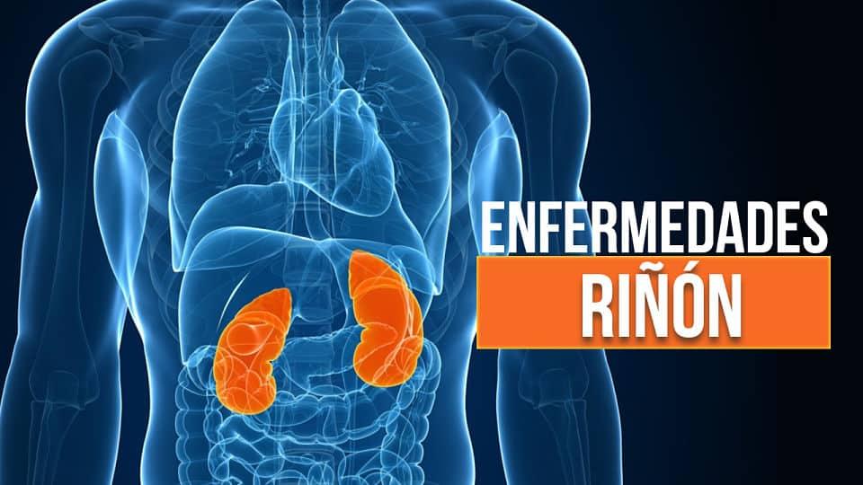 30 Enfermedades del riñón: Características y Síntomas